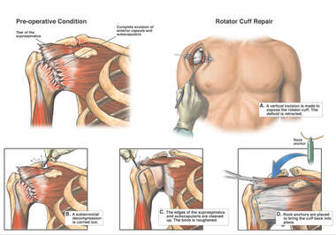 Tear of the Supraspinatus Muscle, Right Shoulder Injury with Surgical Repair