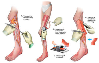 Debridement and Skin Graft Closure of Left Leg Avulsion