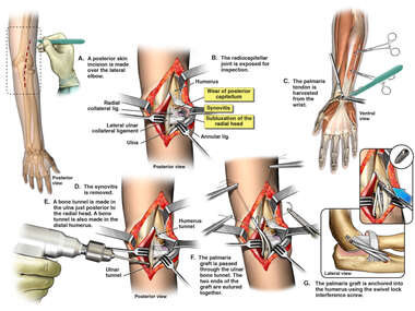 Lateral Ulnar Ligament Reconstruction