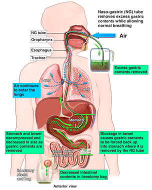 Prevention of Regurgitation and Aspiration