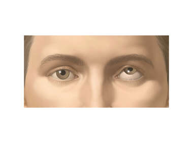 Appearance of Strabismus (Impaired Up, Down Movement)
