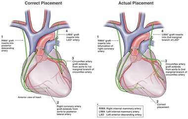 Placement of Coronary Bypass Grafts