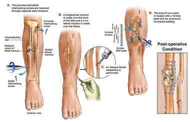 Leg Fracture Osteotomy and Fixation