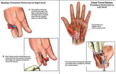 Revision of Fourth Finger Amputation and Surgical Carpal Tunnel Release