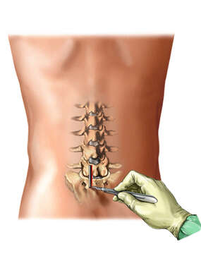 Facet Nerve Block: Lumbar Region