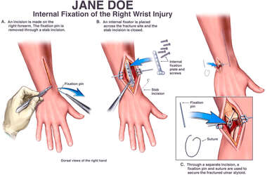Internal Fixation of the Right Wrist Injury