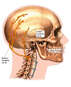 Post-accident Occipital Neuralgia