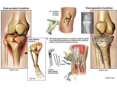 Right Intra-articular Tibial Plateau Fracture with Surgical Fixation