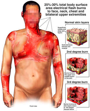 Electrical Flash Burns to Face, Chest and Arms