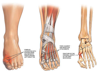 Injuries of the Right Foot
