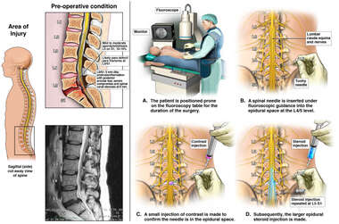 severe compromise and spinal canal stenosis
