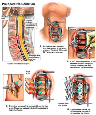 C4-5, C5-6, and C6-7 Cervical Injuries with Triple Level Discectomy and Fusion Procedure