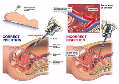 Surgical Laparoscopy with Injury to the Iliac Artery and Vein