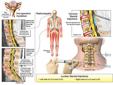 Cervical and Lumbar Injuries and Epidural Pain Management Attempts