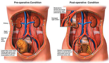 Comparative Female Torsos with Complications Following Removal of Pelvic Mass