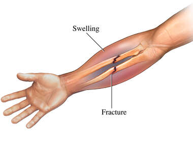 Forearm Fracture with Swelling