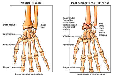 Normal Right Wrist vs. Right Radius and Ulna Fractures