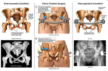 Pelvic and Sacral Fractures with Surgical Fixation