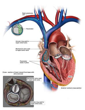 Multiple Heart Surgeries