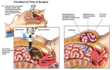 Surgical Laparoscopy with Post-operative Hernia and Bowel Incarceration