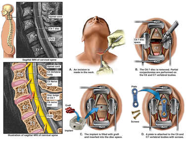 Cervical Spine Injury and Surgery