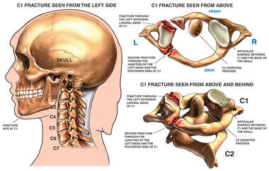 Post-accident Cervical Fractures