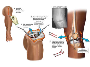 Revision of total Knee Prosthesis and Removal of Fixation Screws