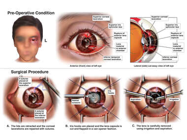 Repair of Corneal Lacerations with Cataract Extraction
