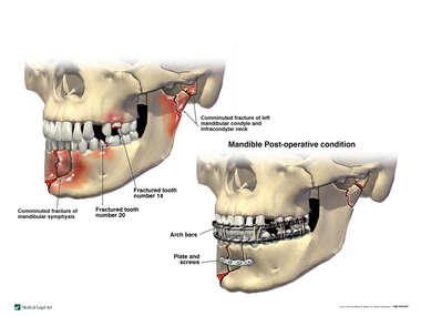 Multiple Head Fractures with Surgical Fixation of the Mandible