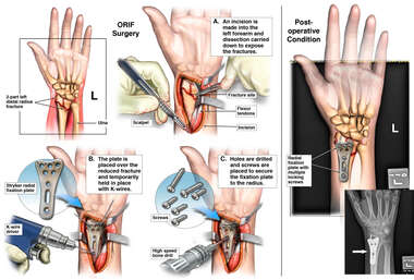 Left Distal Radius Fracture with ORIF Surgery