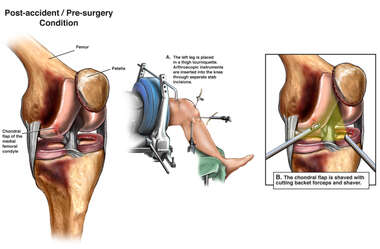 Left Knee Injury with Arthroscopic Repair