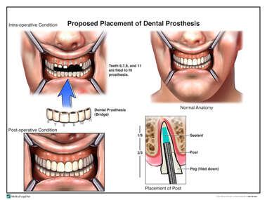 Proposed Placement of Dental Prosthesis