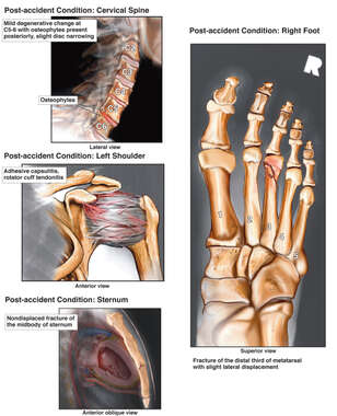 Injuries to the Cervical Spine, Left Shoulder, Sternum and Foot