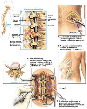 Lumbar Vertebral Fracture and Surgical Fixation