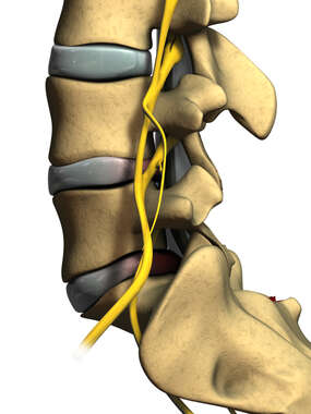 Lateral View of L4-5 Laminectomy