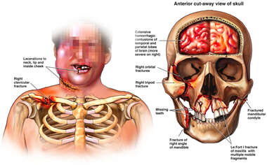 Male Torso with Post-accident Injuries ot the Face, Skull, Shoulder and Brain