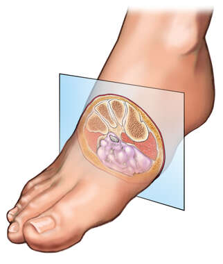 Plantar Neuroma: Cross section of the Foot
