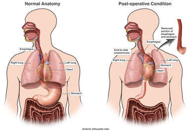 Post-operative Condition of Esophagus and Stomach