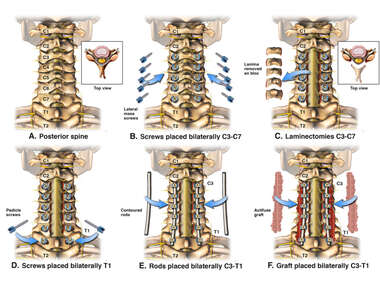 Posterior Cervical Decompression and Fusion with Instrumentation C3-T1