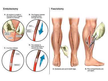 Bilateral Tibial Embolectomy and Fasciotomy