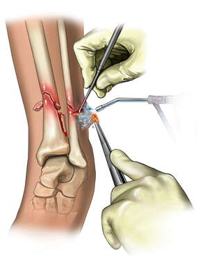 Open Tibial and Fibular Fractures and Debridement of Wound