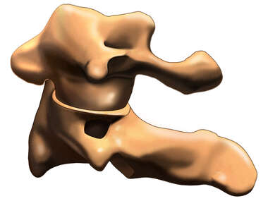 C1, C2 Vertebrae, Lateral View