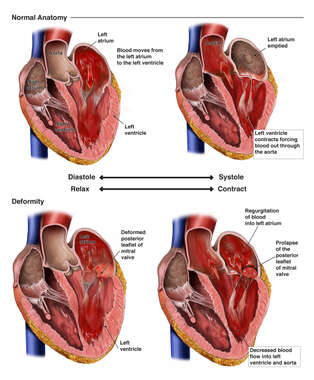 Normal Heart vs. Heart with Mitral Valve Insufficiency