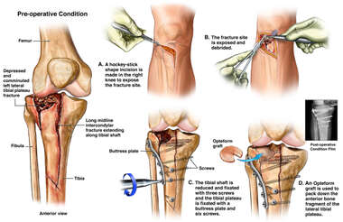 Tibial Plateau Fracture Fixation