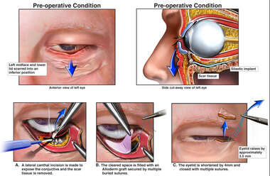 Scar Contractures of Lower Eyelid with Reconstruction