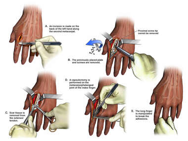 Surgical Removal of Hardware from the Left Hand