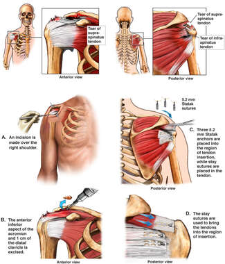 Repair of Supraspinatus Tear