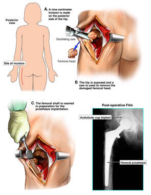 Hip Osteoarthritis with Hip Replacement Surgery