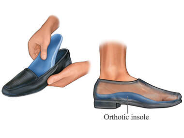 Orthotic Shoe Insole
