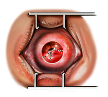 Eye Surgery: Removal of Foreign Object